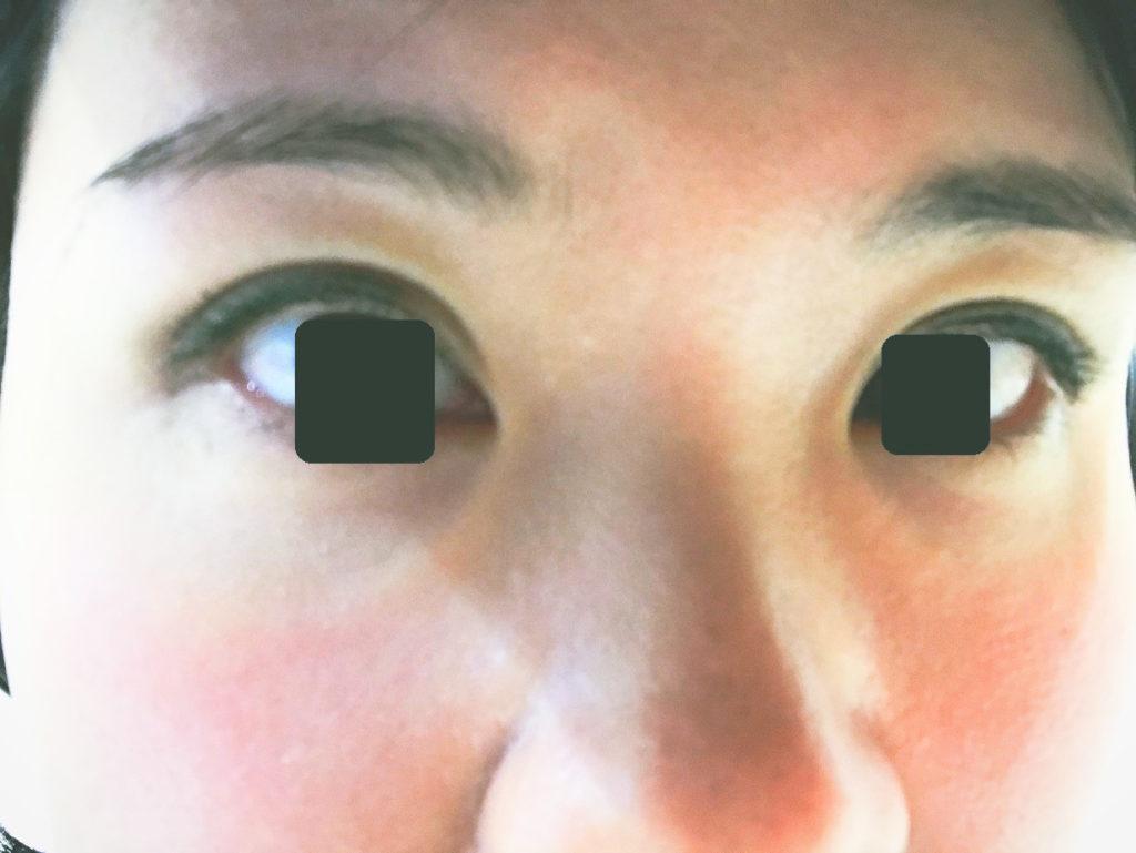 湘南美容クリニック二重手術埋没法クイックコスメティークダブル体験談口コミレポ