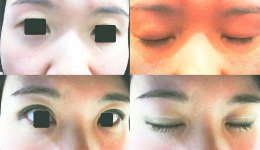 【二重手術の感想3】湘南美容クリニックのクイックコスメティークダブルのダウンタイムを語る